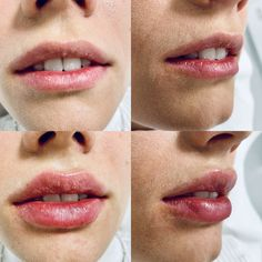 Wunderschönes unmittelbares Ergebnis nach nur 1ml Hyaluronsäure - Teoxane Kiss Lip Fillers, Lips, Lip Augmentation, Trends, Kiss, Lip Shapes, Fuller Lips, Liposuction, Collagen