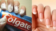 Uses For Toothpaste, Colgate Toothpaste, Grow Nails Faster, How To Grow Nails, How To Make, Nail Fungus, Strong Hair, Rubbing Alcohol, Tips Belleza