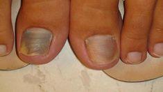 Mani Pedi, Nails, Beauty, Finger Nails, Ongles, Beauty Illustration, Nail, Nail Manicure