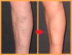 """Este útil tratamiento de las várices es llamado """"hidroterapia"""" Ingredientes Agua Sal de Epson Adicionalmente, necesitas: 2 baldes altos y anchos para que quepan sus dos piernas hasta la rodillas Instrucciones Luego de conseguir los baldes, llénelos uno con agua caliente (pe"""