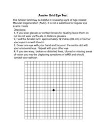 graphic regarding Printable Amsler Grid called Macular Disorder /amsler grid eye attempt