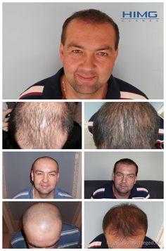 D. László - 8000+ hajszál beültetése - HIMG Klinika  László nagy területen és súlyosan kopaszodott a fejtetőjén. Kihívásként tekintettünk arra, hogy természetes külsőt kapjon a hajbeültetés után. A két napos beavatkozást a HIMG Klinika készítette.  http://hajgyogyaszatszeged.hu/