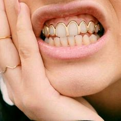Shared by Nuru Angie. Find images and videos about gold and teeth on We Heart It - the app to get lost in what you love. Piercings, Smiley Piercing, Fille Grillz, Gold Slugs, Bling Bling, Grills Teeth, Tooth Gem, Mode Hippie, Jewelry Accessories