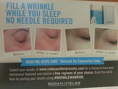 Acute care! Ask me about trying it. Christinesmith@myrandf.com
