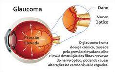 Metade das pessoas que têm glaucoma desconhecem o fato Check-up regular depois dos 60 anos é melhor forma de prevenir a doença