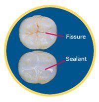 Fillings vs. Sealants