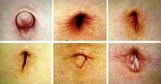 Take a look at your belly button ! This article will teach you how your belly button form can detect if certain organs in the body function properly. Vicks Vaporub, Do You Know What, Told You So, Warts, Shape Of You, Navel, Belly Button, Home Remedies, Diy Home