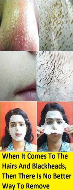 Clogged pores are an irritating restorative issue for various individuals. They are really skin inflammation which happen as the aftereffect of obstructed hair follicles. In contact with air, these… #homemadefacemasksforpores