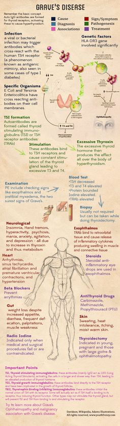 Graves disease medical illustration, cause, diagnosis, management of graves thyroid disease