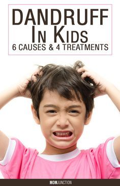 Dandruff In Kids – 6 Causes & 4 Treatments You Should Be Aware Of