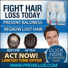 Provillus Comments - Hair Loss Therapy Evaluations Guidelines and Secrets and techniques #Provillus #hair_loss #baldness