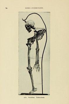 Vertebrae. Tuberculosis. Bulletin of the Warren Anatomical Museum. Cambridge: Harvard University Press, 1910. Looks so painful.