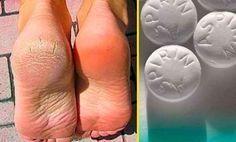Elimina la dureza de los pies con Aspirina, SORPRENDENTE truco de belleza | MEDICINA NATURAL
