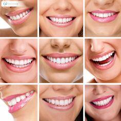 !Nuestra pasión es verte sonreír¡ Diseño de Sonrisa - Déjanos conocer tu caso Pbx: 6571629 - WhatsApp: 3008934528 http://ninacontrerascmf.com/