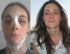 Has enjoyed a successful transition mayra viamonte Ffs Surgery, Mtf Before And After, Facial, Cc Images, Crossdressers, Transgender, Beauty, Women, Woman