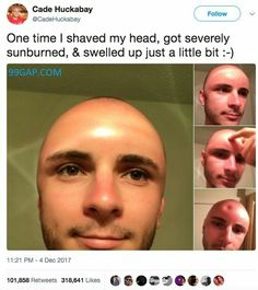 #LOL: Funny Tweets About Shaved Man vs. Sunburn
