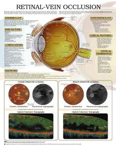 5296-retinal-vein-occlusion.jpg (1616×2041)