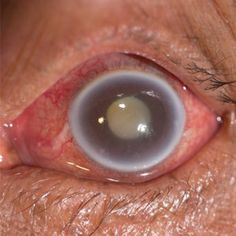 Blood vessel damage from elevated blood pressure might make the eye disease glaucoma more likely | www.health24.com