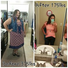 Before and after gastric sleeve 200 lb weight-loss