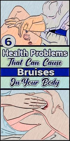 Do you notice bruises on your body that occur for no reason? Bruises occur when your capillaries are very thin and it's not something you should neglect. Health And Fitness Expo, Fitness App, Health And Wellness Quotes, Health And Fitness Articles, Health Tips For Women, Wellness Tips, Health And Wellbeing, Health And Nutrition, Deep Blackheads