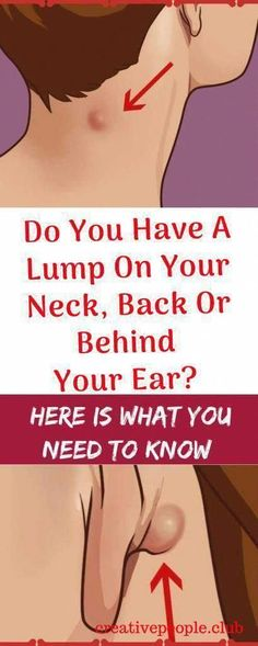 Vital Pieces of Lumps on Neck - Healthy Medicine Tips