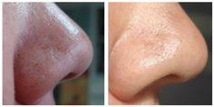 Mascarilla facial con bicarbonato de sodio para espinillas y puntos negros