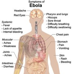 Ebola Symptoms and cure in hindi