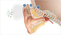 Bone Anchored Hearing Aid (BAHA). Repinned by SOS Inc. Resources.  Follow all our boards at http://pinterest.com/sostherapy  for therapy resources.