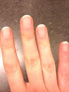 #finally #shellac #removed #remove #polish #having #home #hate #how #yes #get #to #at #it #i How to remove shellac polish at home - YES finally. I hate having to get it remove... Remove Shellac Polish, Shellac Nail Art, Gel Nails, Nail Polish, Acrylic Nails, Beauty Bar, Diy Beauty, Cute Nails, Tips
