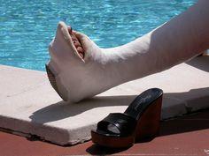 Abnehmen mit gebrochenem Knöchel