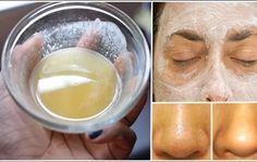 Ceci est le meilleur Masque : Mélanger bicarbonate de soude et de citron