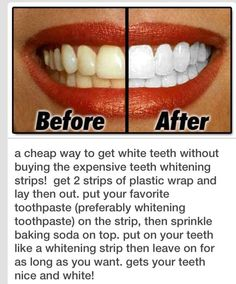 DIY Home remedies for teeth whitening. Tooth paste and baking powder. Have not tried this, but it looks good! No harmful acids that would make your teeth sensitive. Teeth Whitening Remedies, Natural Teeth Whitening, Whitening Kit, Homemade Teeth Whitening, Beauty Care, Beauty Skin, White Teeth Tips, Diy Beauty Hacks, Get Whiter Teeth