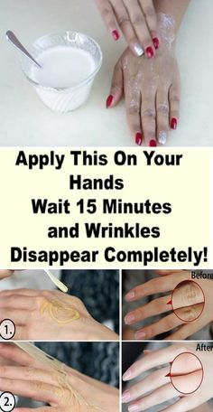 Apply This On Your Hands, Wait 15 Minutes And Wrinkles Disappear Completely! – Healthy Magazine