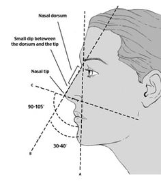 "Visually, a commonly considered ""perfect nose"" takes into account the relationship between the nasal bridge and nasal tip in the creation of a harmonious and unified appearance. Some of these features include a straight nasal dorsum, a narrow nasal tip, a small dip between the nasal dorsum and tip, appropriate facial angles, and appropriate nasal projection and width."