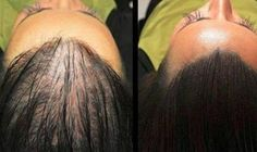 Stem cell hair regrowth extreme hair loss treatment,serious hair fall what causes your hair to thin,hair fall control and hair growth to avoid hair loss. Natural Hair Growth Remedies, Hair Loss Remedies, Natural Hair Regrowth, Excessive Hair Loss, Pelo Natural, Regrow Hair, Hair Loss Treatment, Hair Treatments, Stop Hair Loss