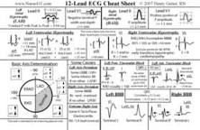 12 Lead EKG Pocket Card: APRN World: 9781941004067: Amazon