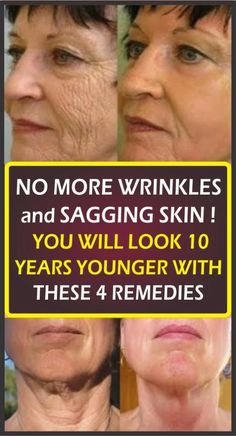 Home Remedy To Erase All Aging Signs From Your Face – Health Awareness Media Medicine Book, Herbal Medicine, Natural Medicine, Face Health, Stress, Les Rides, Sagging Skin, Sagging Cheeks, Wrinkle Remover