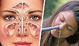 Sinüzit için Kolay Doğal Tedaviler