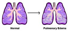 Pulmonary edema usually occurs when you have COPD Umbilical Hernia, Pulmonary Edema, Simple Signs, Shortness Of Breath, Heart Failure, Medical College, Neurotransmitters, Anxiety, Health