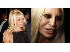 Donatella Versace. AP/Reuters | Donatella Versace en 1997 (izquierda) y en el 2010 (derecha), tras convertirse en la reina de la adicción a las cirugías. Muestra que la fama y el dinero no pueden comprar la belleza. AP/Reuters