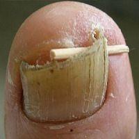 Nagelpilz kann samt Wurzel entfernt werden! Notieren Sie das Rezept: Man nehme