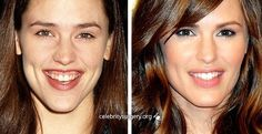 Celebrity Jennifer Garner before and after plastic surgery images, Rhinoplasty - nose job Lips augmentation filler collagen injections, celeb nosejob gum surgery Jennifer Garner, Veneers Teeth, Dental Veneers, Dermal Fillers, Lip Fillers, Celebrity Smiles, Madonna, Lip Augmentation, Botulinum Toxin