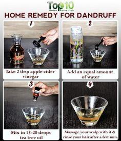 Home Remedies for Dandruff. Eczema Home Remedies Apple Cider Vinegar Home Remedies For Dandruff, Top 10 Home Remedies, Natural Home Remedies, Natural Healing, Herbal Remedies, Health Remedies, Holistic Healing, Cold Remedies, Hair Remedies