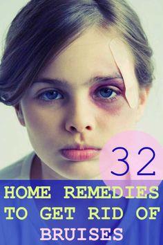 how to get rid of bruising around the eye