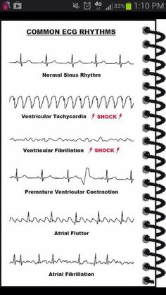 ECG rhythms every nurse must learn! Cardiac Nursing, Nursing Mnemonics, Nursing Information, Nursing School Notes, Nursing Schools, Medical School, Medical Jokes, Nursing School Graduation, Nursing Tips