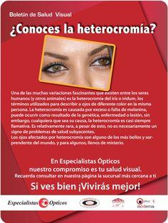 ¿Conoces la heterocromía?