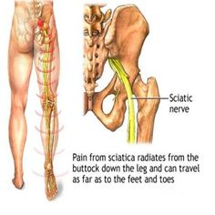 Calf Treatment for Sciatica Pain