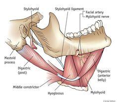 Dental origin of Ludwig's angina