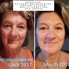 Rodan + Fields gives you the best skin of your life and the confidence that comes with it. Created by Stanford-trained Dermatologists, we understand skin. Our easy-to-use Regimens take the guesswork out of skincare so you can see transformative results. Rodan Fields Skin Care, Rodan And Fields, Wrinkle Remedies, Cellulite Scrub, Face Wrinkles, Uneven Skin Tone, Dull Skin, Skin Firming, Skin Care Regimen
