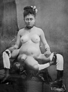 Blanche Dumas was born on the island of Martinique in 1860. She had a third leg attached to her sacrum, and her two primary legs were said to be imperfectly developed. The third leg was without a mobile joint. She had double genitalia as well as a duplicate bowel and bladder. To the right of her middle leg was the stump of another limb. Promoters sought to maximize its appeal by adorning it with nipples and advertising it a pair of extra breasts.
